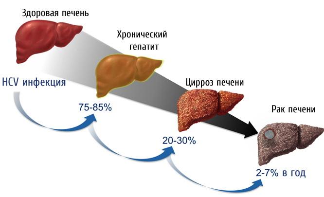 Гепатит С: история возникновения и механизмы излечения опасного заболевания