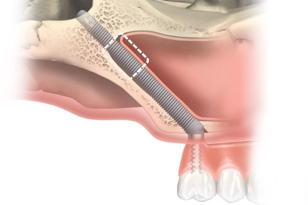 Скуловая имплантация - Zygoma