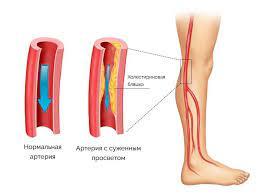 Как лечить атеросклероз ног